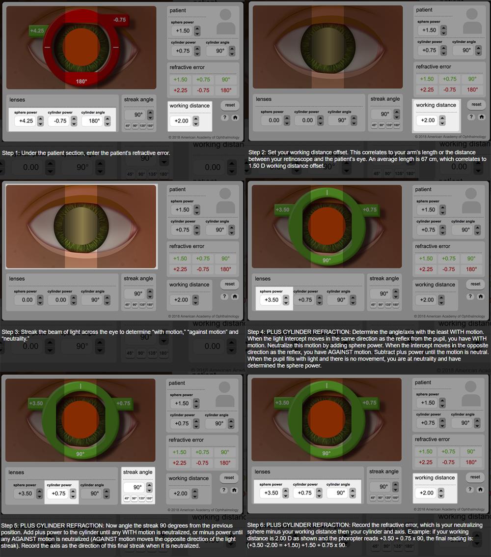 Retinoscopy Simulator - American Academy of Ophthalmology