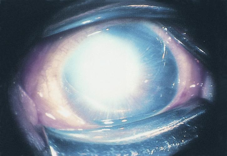 Peters Anomaly Left Eye American Academy Of Ophthalmology