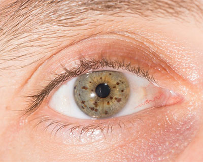 Nevus (Eye Freckle) - American Academy of Ophthalmology