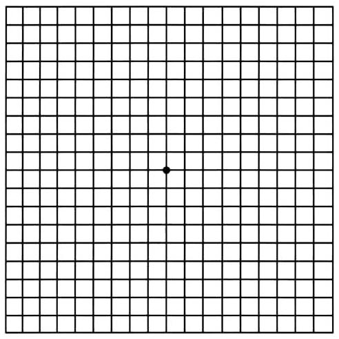 Amsler Grid, used at home daily to track vision changes in people with some eye conditions like AMD or toxoplasmosis