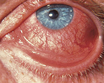 Conjunctivitis What Is Pink Eye American Academy Of Ophthalmology
