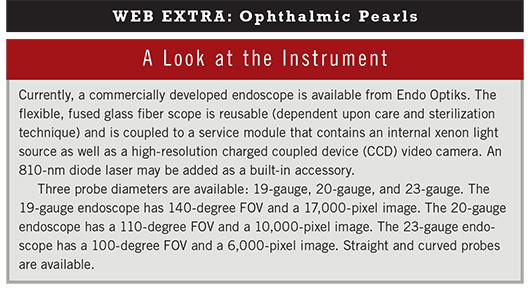 June 2013 Ophthalmic Pearls Web Extra