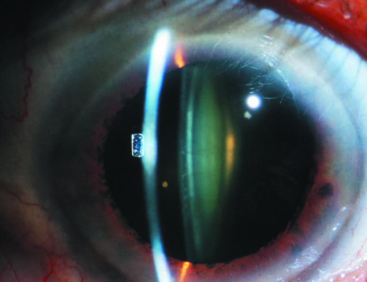 Quot Oil Droplet Quot Cataract American Academy Of Ophthalmology