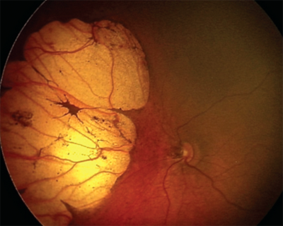 Zika Virus Linked To Retinal Lesions In Microcephalic