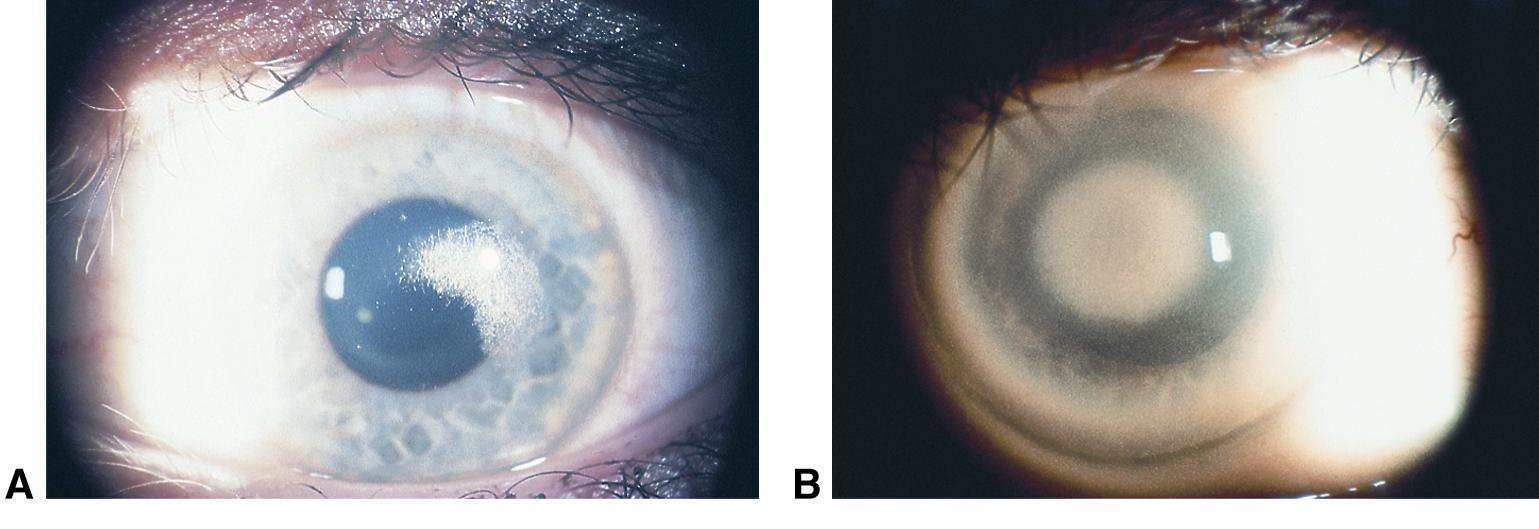 Pediatric Corneal Opacities on fetal alcohol syndrome