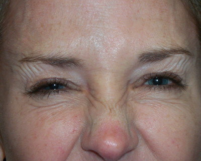 Photograph of forehead wrinkles after Botox