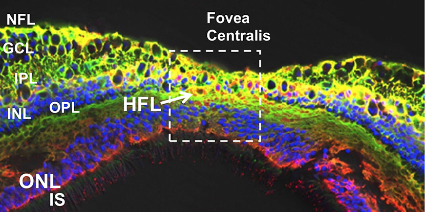 Aquaporin-4-positive neuromyelitis optica spectrum disorder linked to glial cell dysfunction