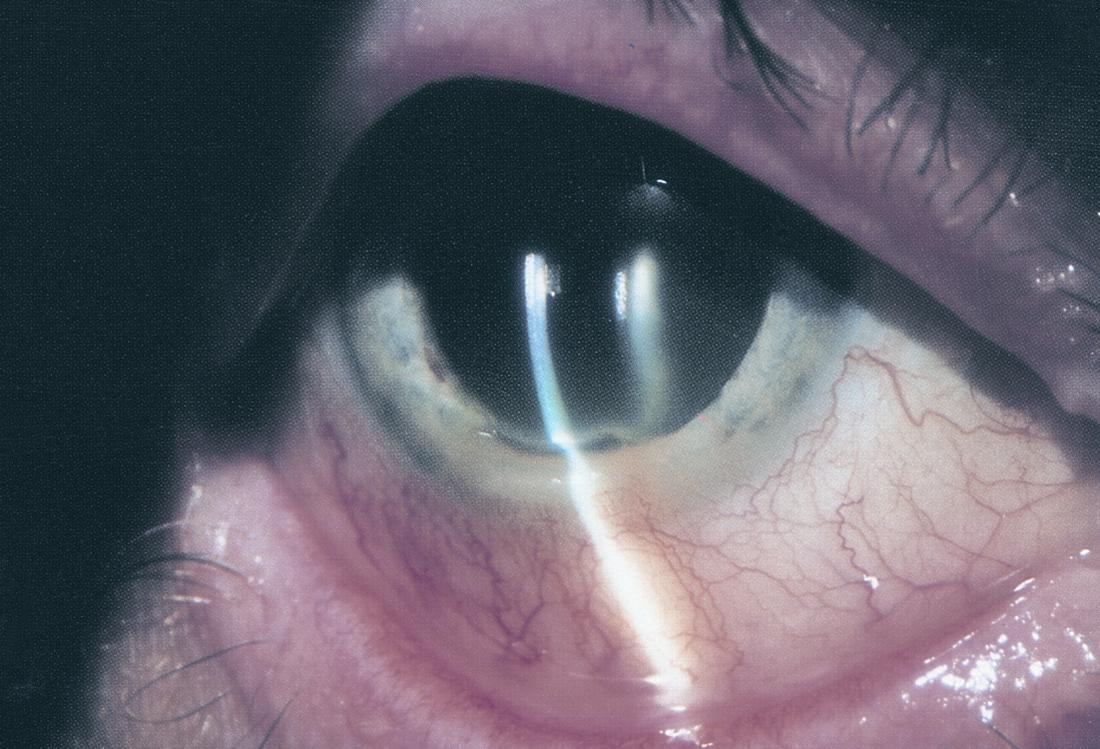 Peripheral Ulcerative Keratitis American Academy Of