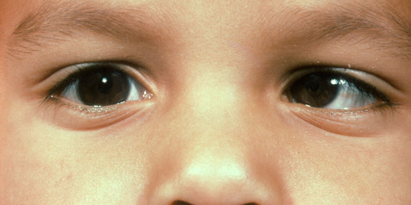 Child being tested for strabismus with corneal light reflex. Asymmetrical reflections of light in eyes show child may have strabismus.