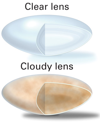 The definition of a cataract is a cloudy lens in the eye, whatever the cause may be. Here the cataract lens is compared to a natural clear lens.