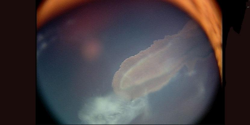 Week in review: DeepMind testdrive, tarsier goggles, needle point
