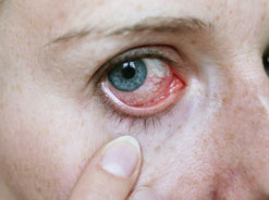 Finger pulling down eyelid to show bloodshot eye