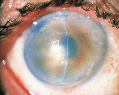 Novel treatment restores corneal clarity in patients with bullous keratopathy