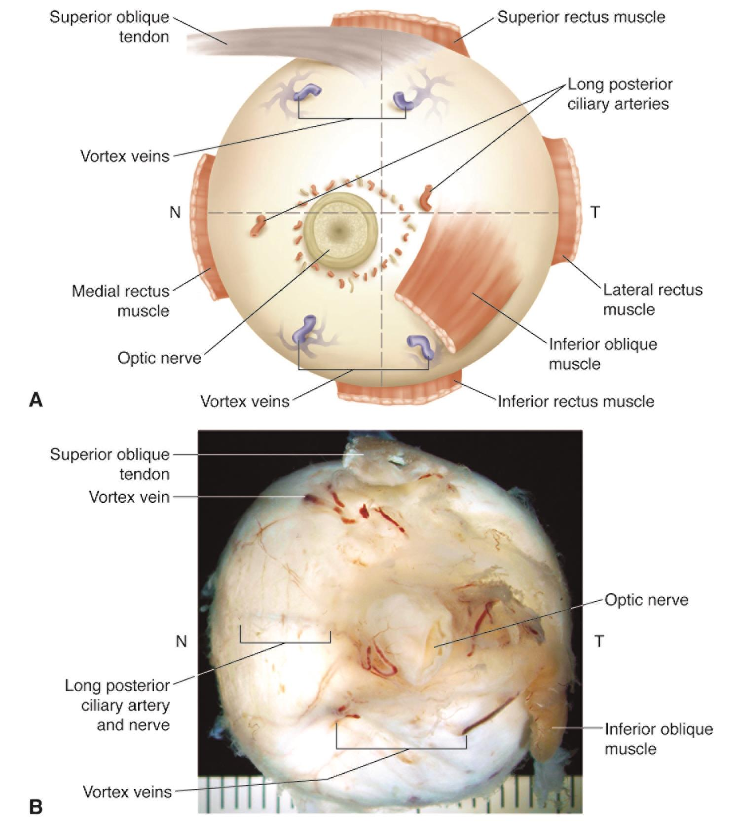 Posterior View Of Right Globe American Academy Of