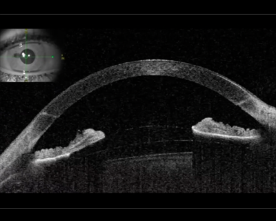 Cataract Anterior Segment American Academy Of Ophthalmology