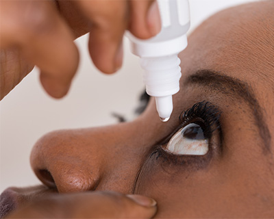 Woman putting an eye drop in her eye