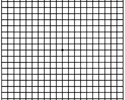 Image of an Amsler grid, which patients use to monitor progression of AMD