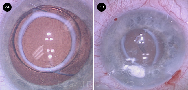Cataract Complications American Academy Of Ophthalmology