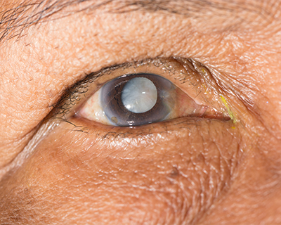 Close-up photo of an elderly man's cataract