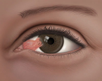 Illustration of an eye with a Pterygium