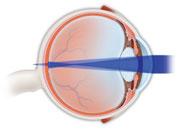 Astigmatic eye