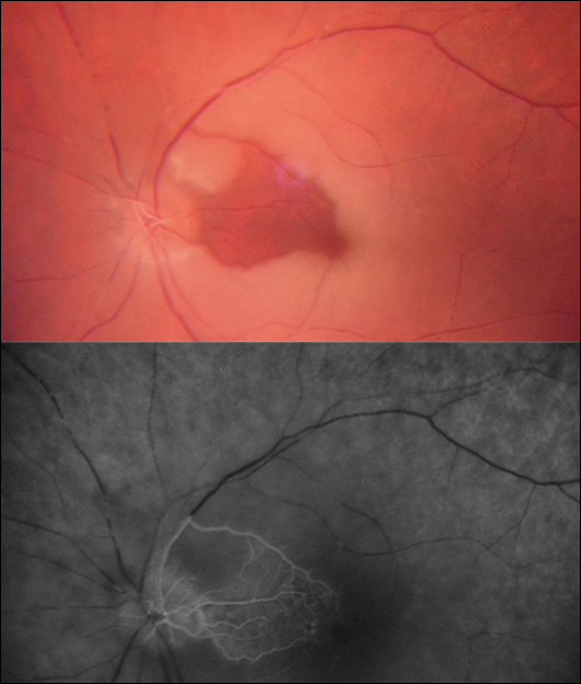 Retinal Infarction