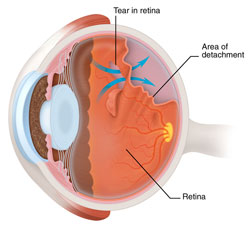 retinal detachment: torn or detached retina causes - american, Skeleton