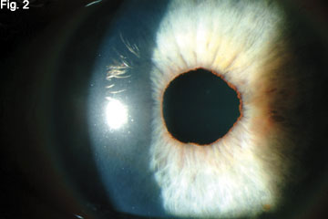 At the Slit Lamp 2