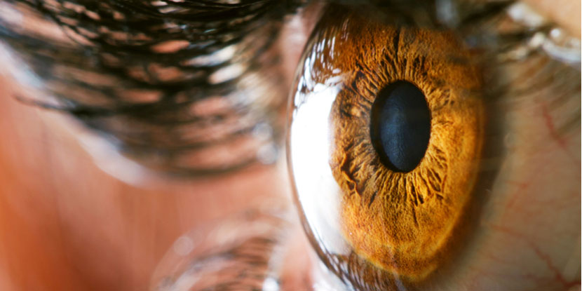 What to Expect When You Have a Corneal Transplant - American Academy
