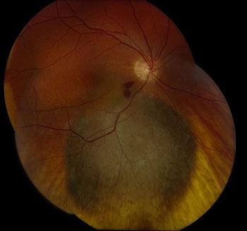 Advanced uveal melanoma. Photo courtesy of Adam Sweeney, M.D., and Divakar Gupta, M.D., University of Washington.