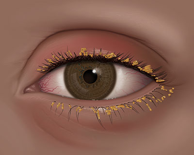 An illustration of blepharitis, where the eyelids become coated with oily particles and bacteria near the base of the eyelashes