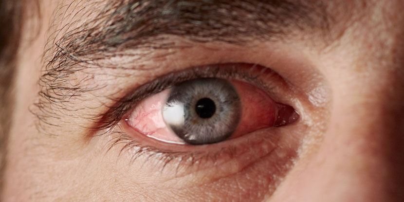 Quick Home Remedies For Pink Eye American Academy Of