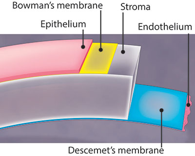 Illustration of the microscopic layers of the cornea, including Bowman's membrane. This layer is under the epithelium, which is the outermost layer of the cornea.
