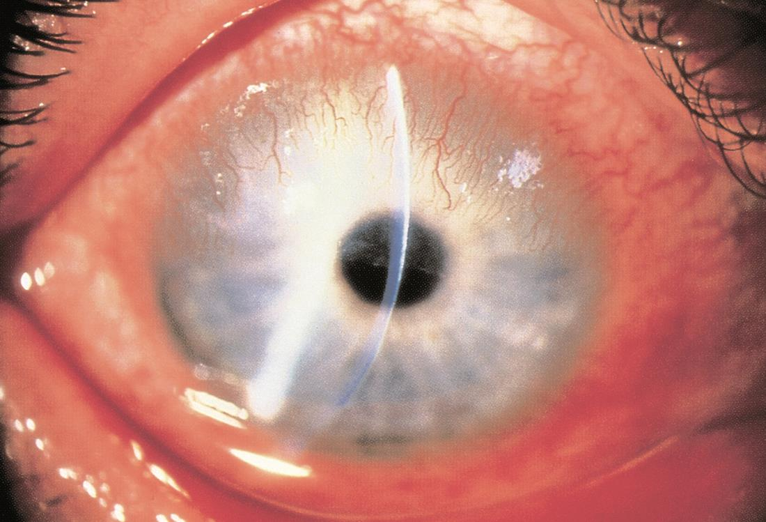 Corneal Pannus American Academy Of Ophthalmology