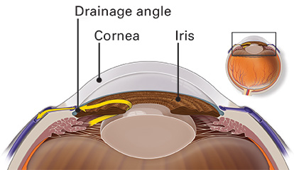 Illustration of the drainage angle in a healthy eye. The iris does not prevent fluid from draining out of the eye.