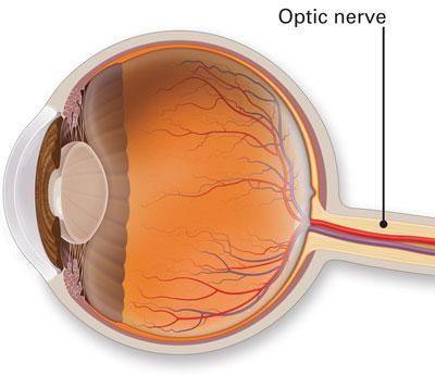 Diagram of Optic nerve in the eye
