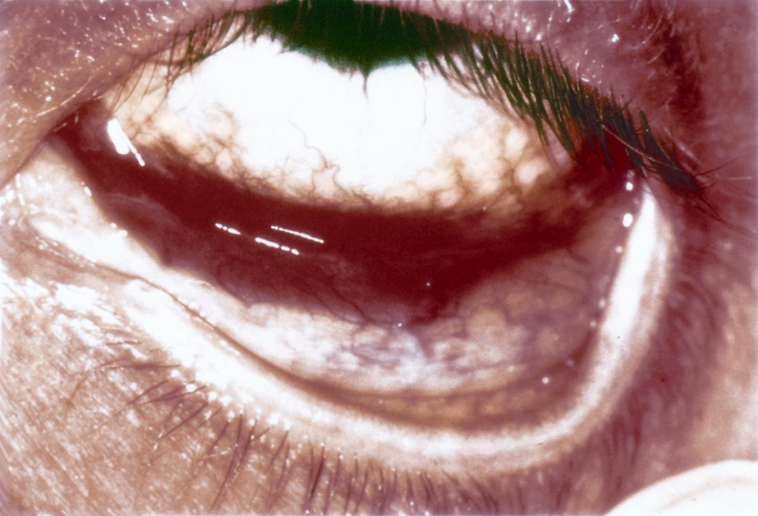 Kaposi Sarcoma Of The Conjunctiva American Academy Of