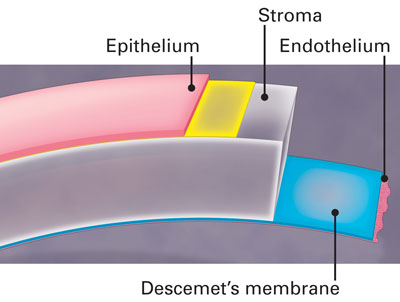 Diagram of Epithelium, Stroma, Endothelium and Descemet's membrane in th eye