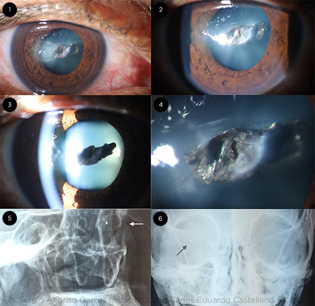 Traumatic Cataract by Foreign Body