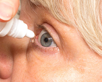 A closeup of a woman putting an eye drop in her eye