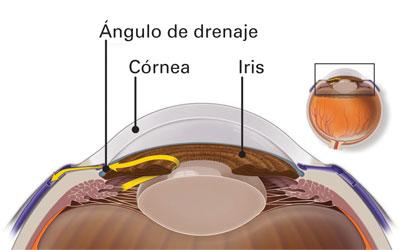 ángulo de drenaje en un ojo sano - glaucoma