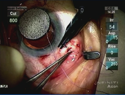 Anterior Vitrectomy