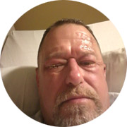 Jeff Strayer, being treated in hospital for a workplace chemical burn to his eyes.