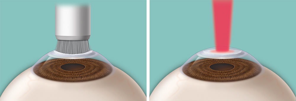 With photorefractive keratectomy (PRK), a special brush may be used to remove the outermost layer of the cornea (left); a laser removes tissue from the cornea to reshape it (right).