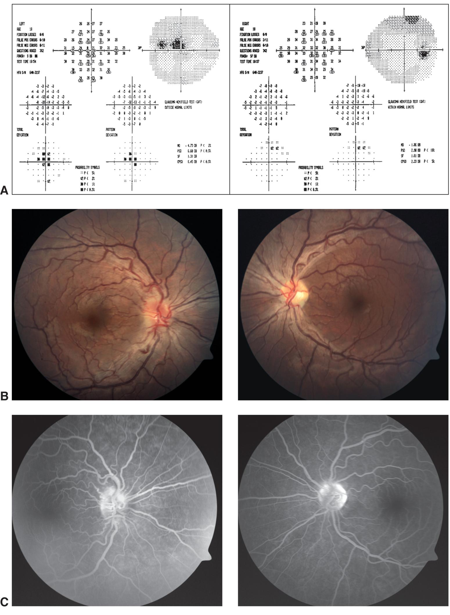 mitochondrial dysfunction in leber's hereditary optic Leber hereditary optic neuropathy (lhon) is a mitochondrial genetic disease that preferentially causes blindness in young adult males, affecting about 1 in 25 000 of the british population.