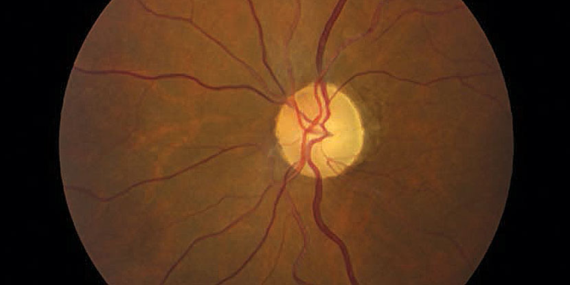 Characteristics of optic neuropathy in patients with Behçet disease