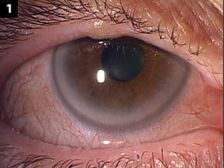 Generalized injection of bulbar conjunctiva