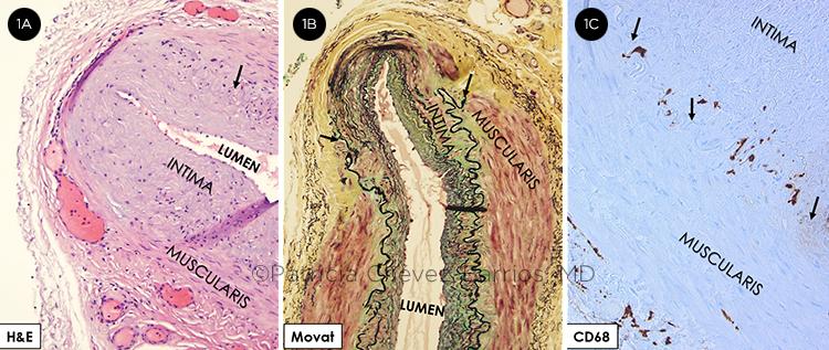 Pathology Clues