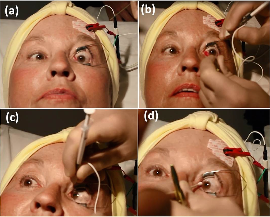 Congratulate, what Treatment strabismus adults apologise, but