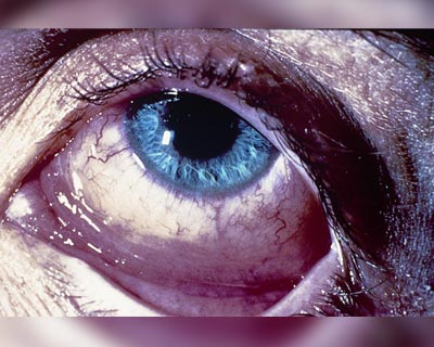 Closeup of an eye with allergic conjunctivitis.
